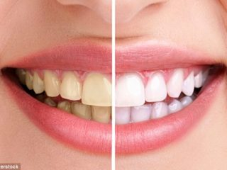 remedies for teeth whitening